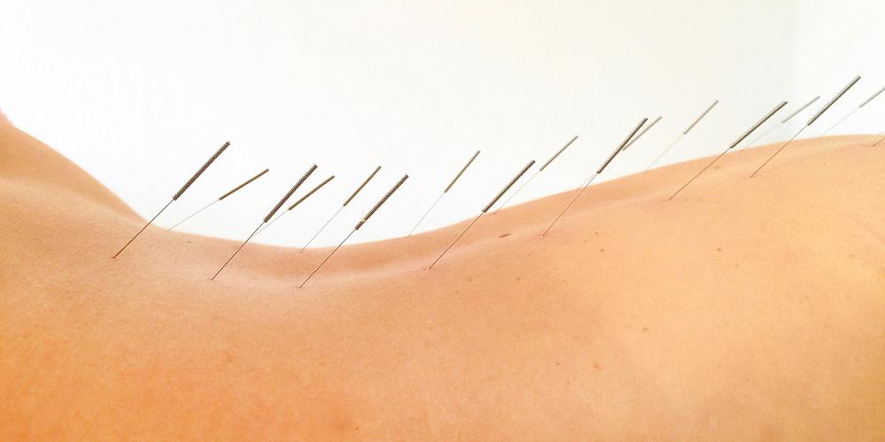 Flor Aul - Klinika akupunktury - Pyrzyce (Szczecin) i Gorzów Wielkopolski - Akupunktura, bańki, moksybucja i masaż Gua Sha - slajd 01
