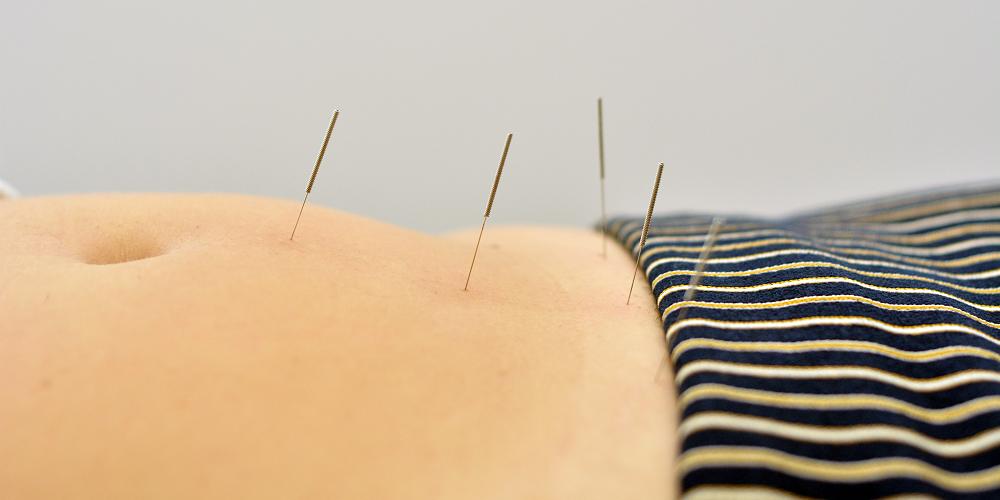Flor Aul - Klinika akupunktury - Pyrzyce (Szczecin) i Gorzów Wielkopolski - Akupunktura, bańki, moksybucja i masaż Gua Sha - slajd 04