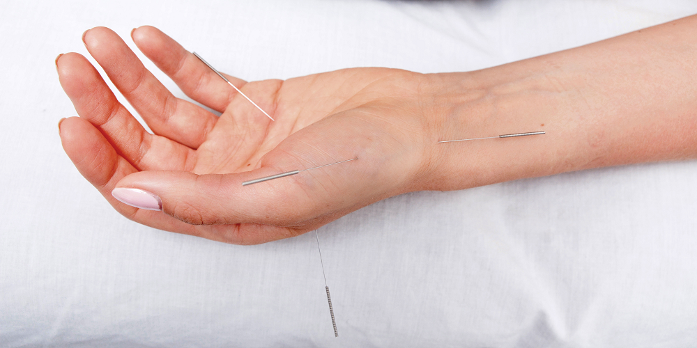 Flor Aul - Klinika akupunktury - Pyrzyce (Szczecin) i Gorzów Wielkopolski - Akupunktura, bańki, moksybucja i masaż Gua Sha - slajd 05