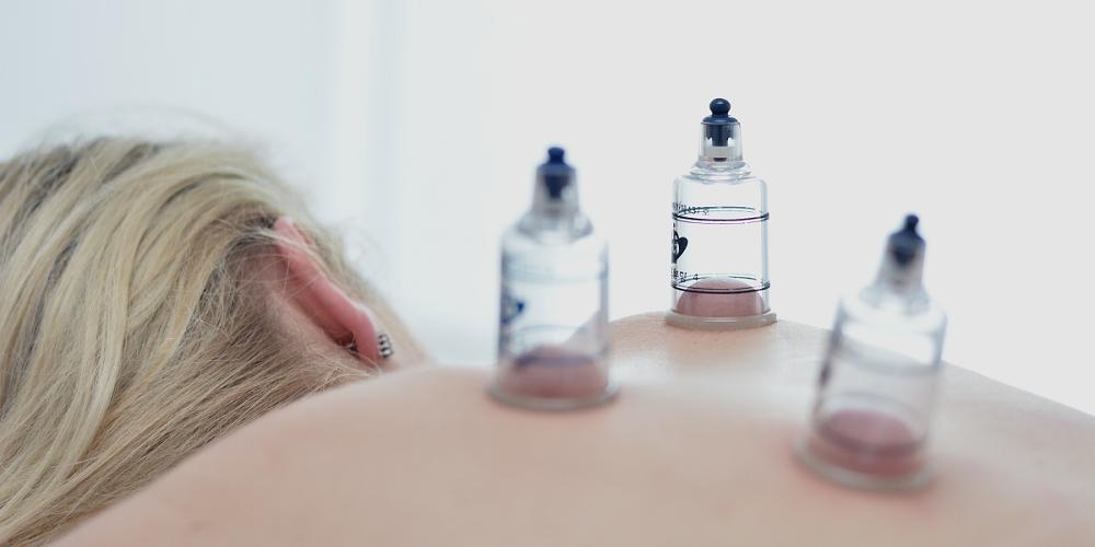Flor Aul - Klinika akupunktury - Pyrzyce (Szczecin) i Gorzów Wielkopolski - Akupunktura, bańki, moksybucja i masaż Gua Sha - slajd 07