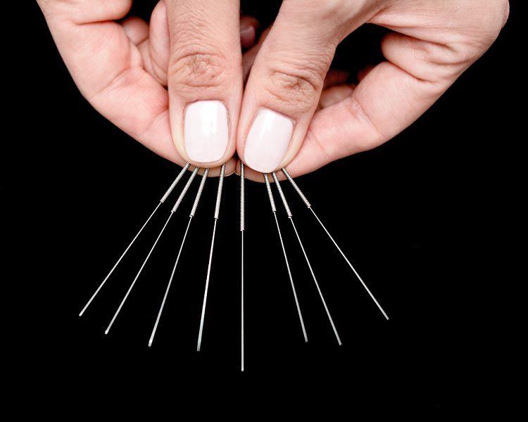 Flor Azul - Klinika Akupunktury, dr. Maria Czekaj - ilustracja do artykułu: Dlaczego warto spróbować akupunktury